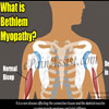 What is Bethlem Myopathy, Know it's Causes, Symptoms, Treatment, Diagnosis