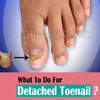 What To Do For Detached Toenail?