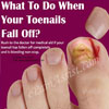 What To Do When Your Toenails Fall Off?
