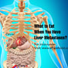 What To Eat When You Have Liver Metastases?