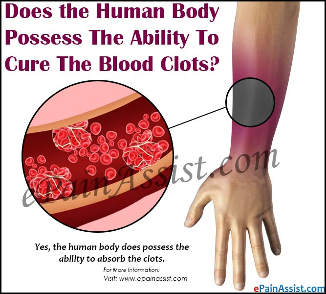 Does The Human Body Possess Ability To Cure Blood Clots
