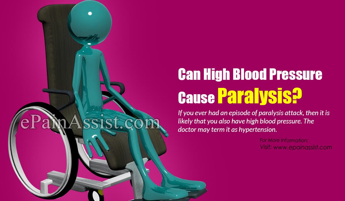 Can High Blood Pressure Cause Paralysis?