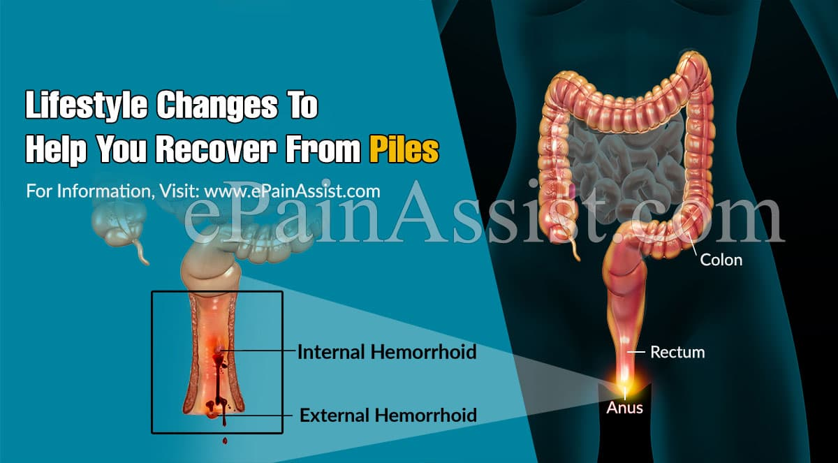 Lifestyle Changes To Help You Recover From Piles