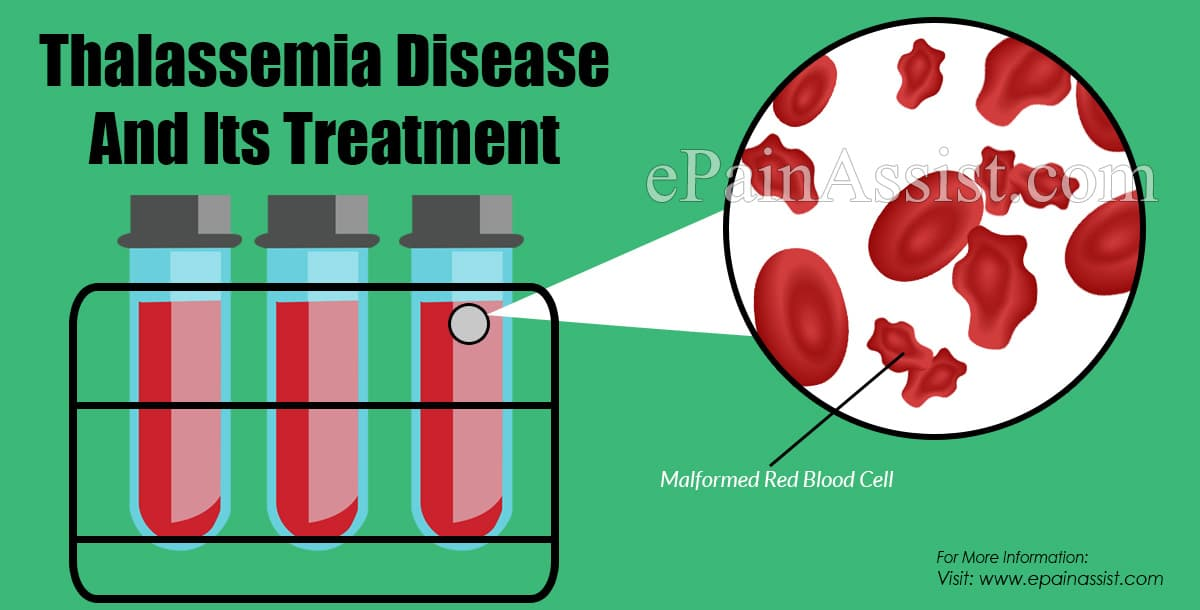Thalassemia Disease And Its Treatment