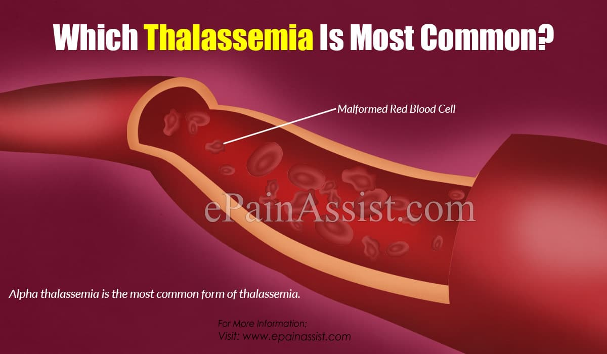 Which Thalassemia Is Most Common?