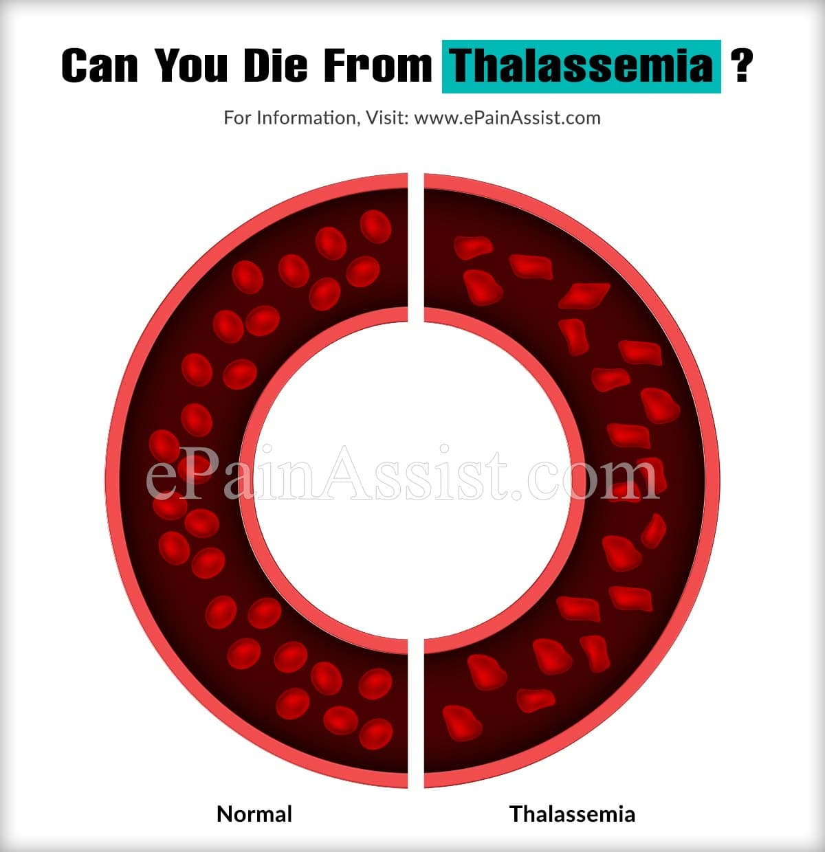 Can You Die From Thalassemia?