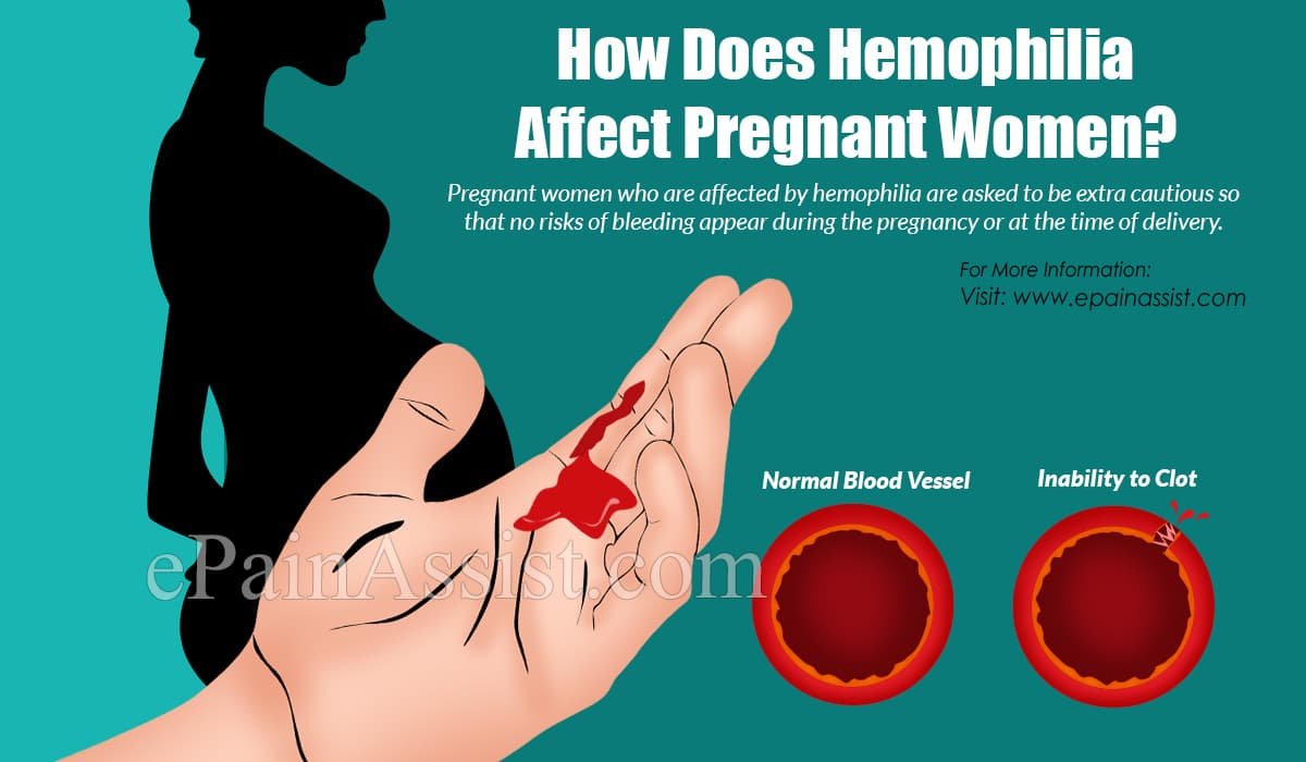 How Does Hemophilia Affect Pregnant Women?