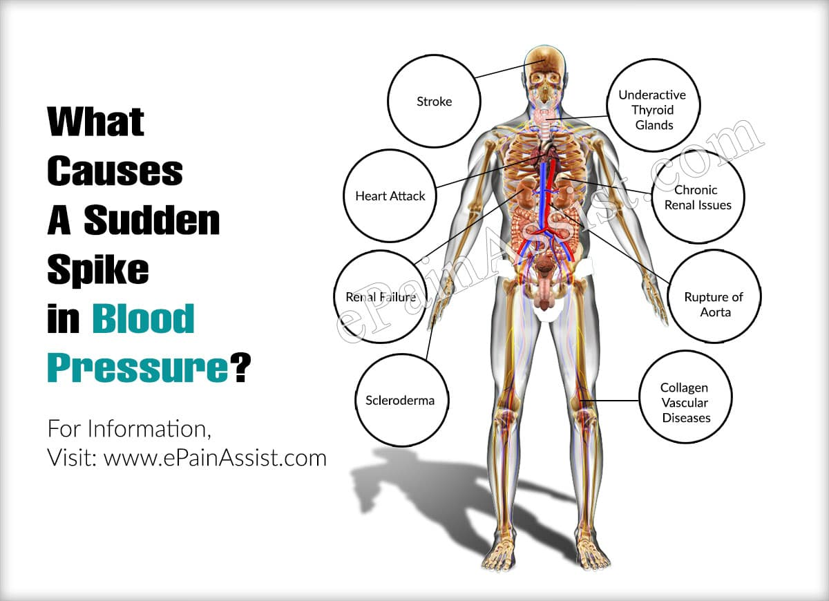 What Causes A Sudden Spike in Blood Pressure?