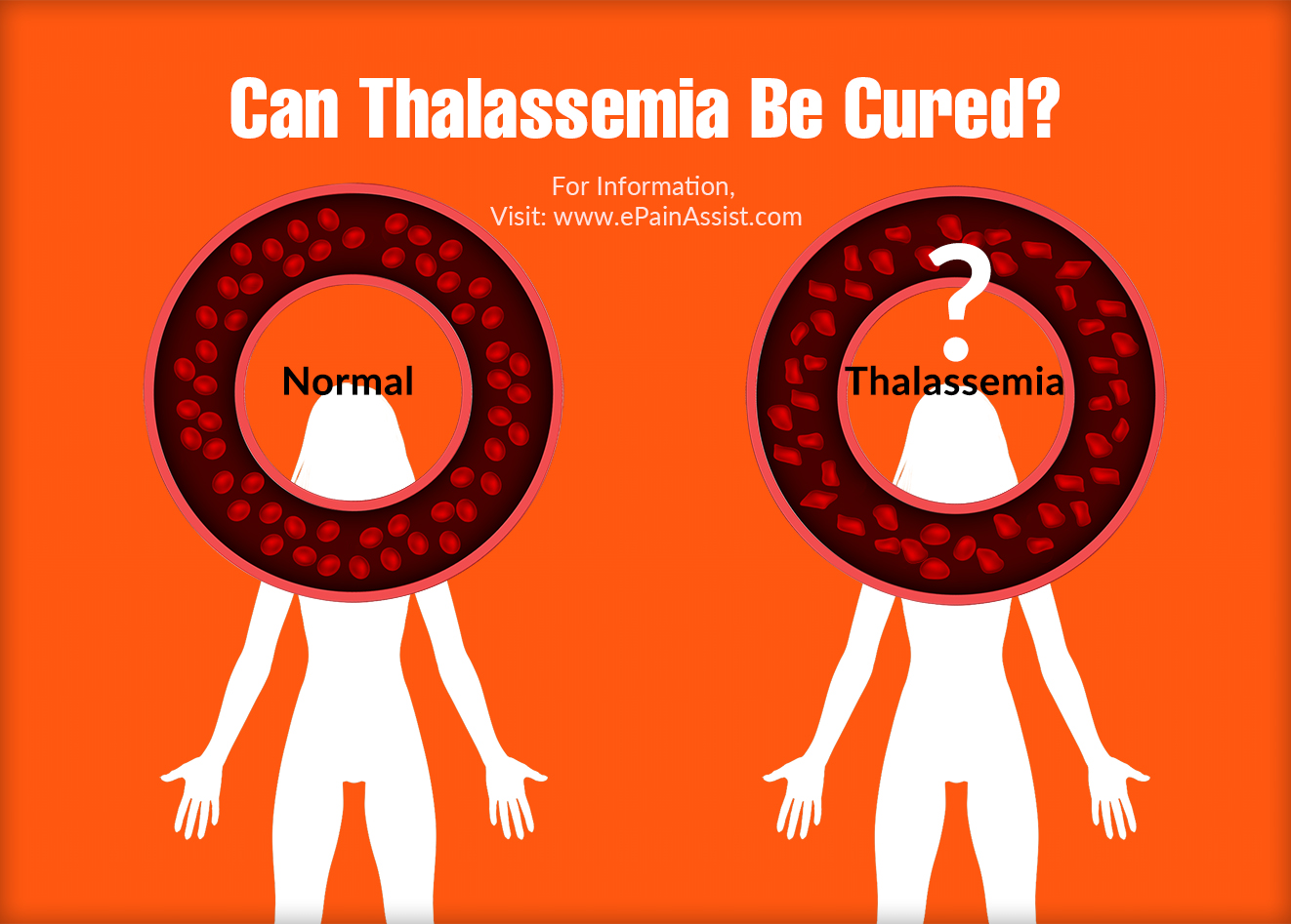 Can Thalassemia Be Cured?