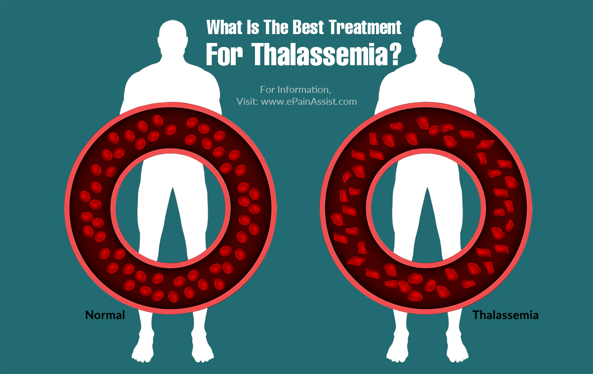 What Is The Best Treatment For Thalassemia?