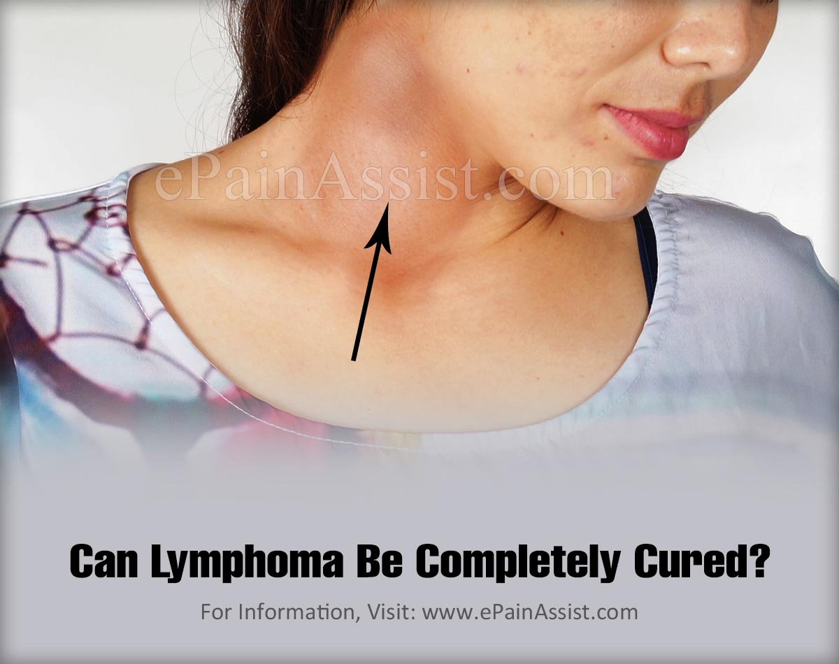 Can Lymphoma Be Completely Cured?