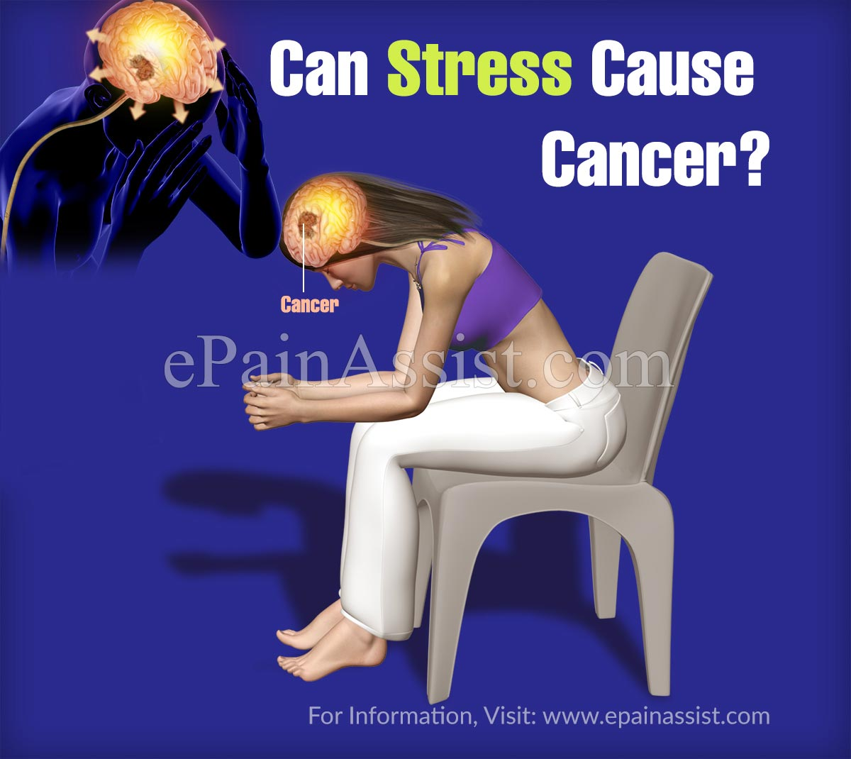 Can Stress Cause Cancer?