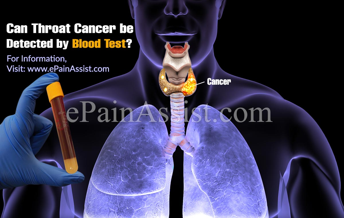 Can Throat Cancer be Detected by Blood Test?