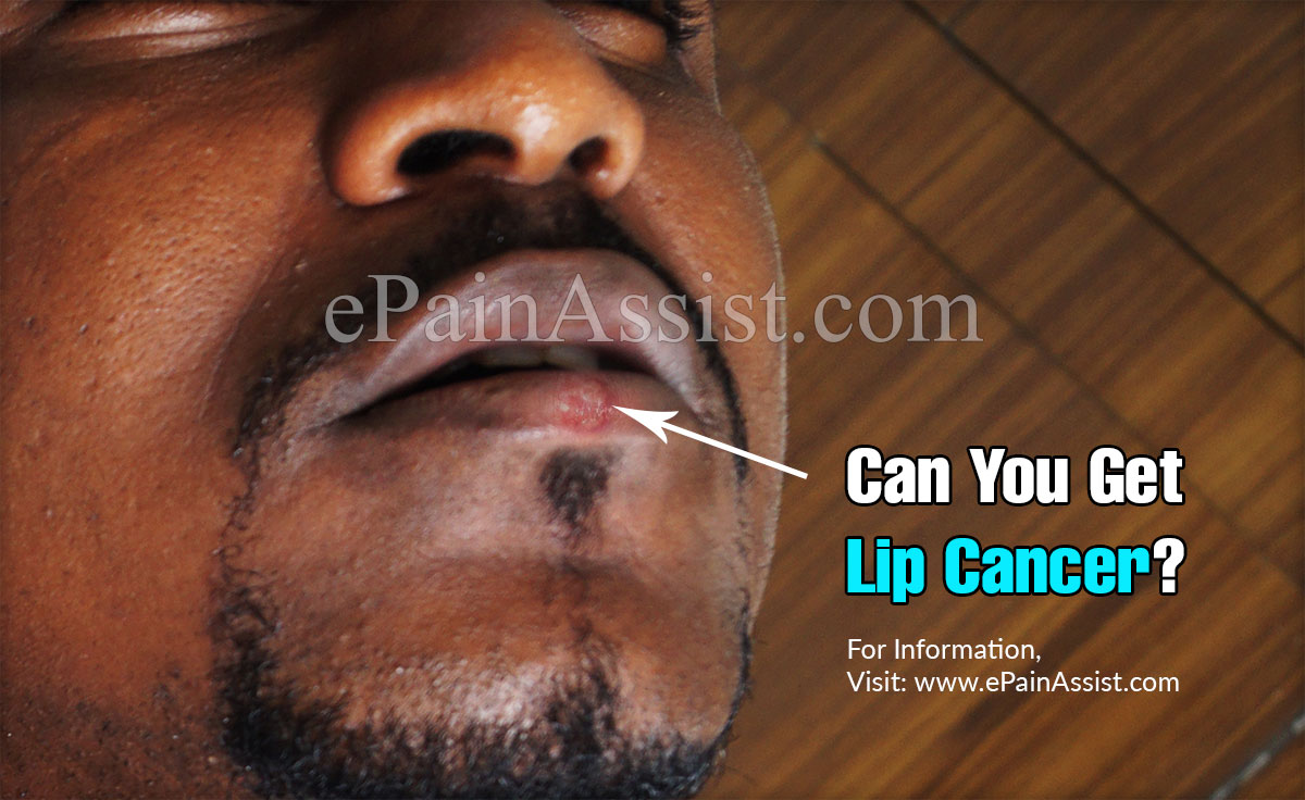 Can You Get Lip Cancer?