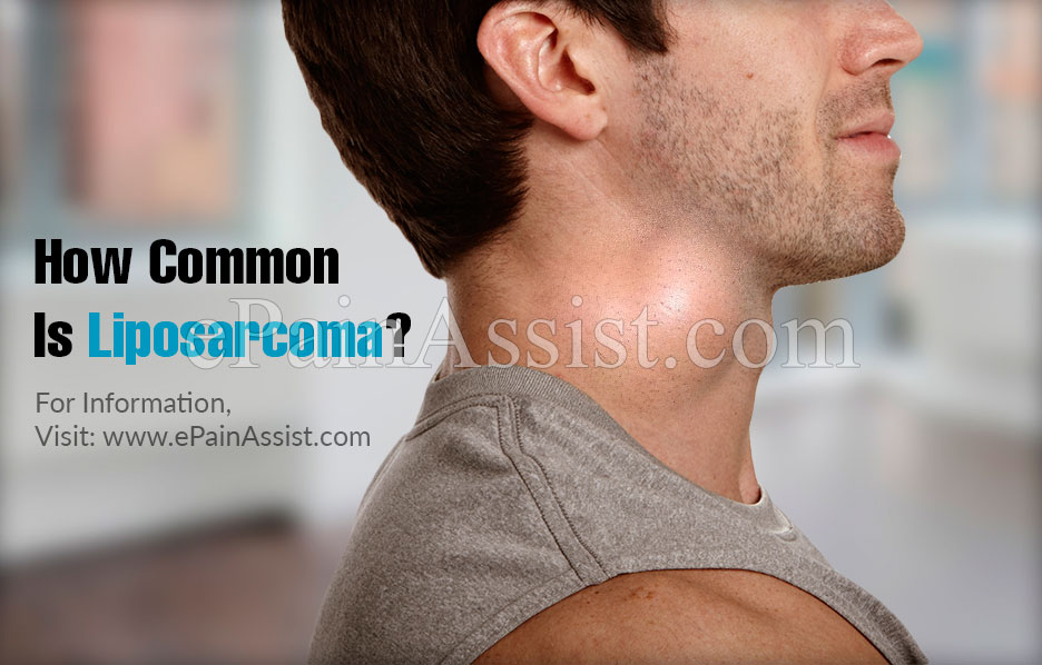 How Common Is Liposarcoma?