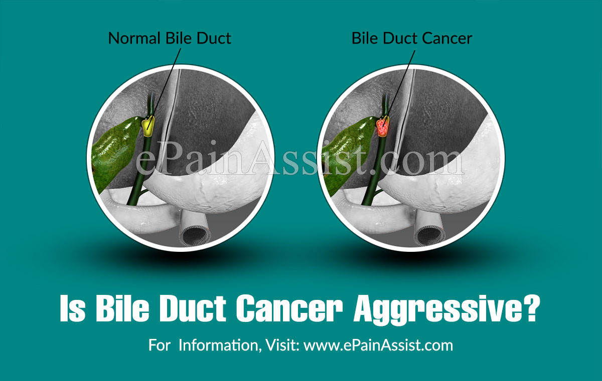 Is Bile Duct Cancer Aggressive?