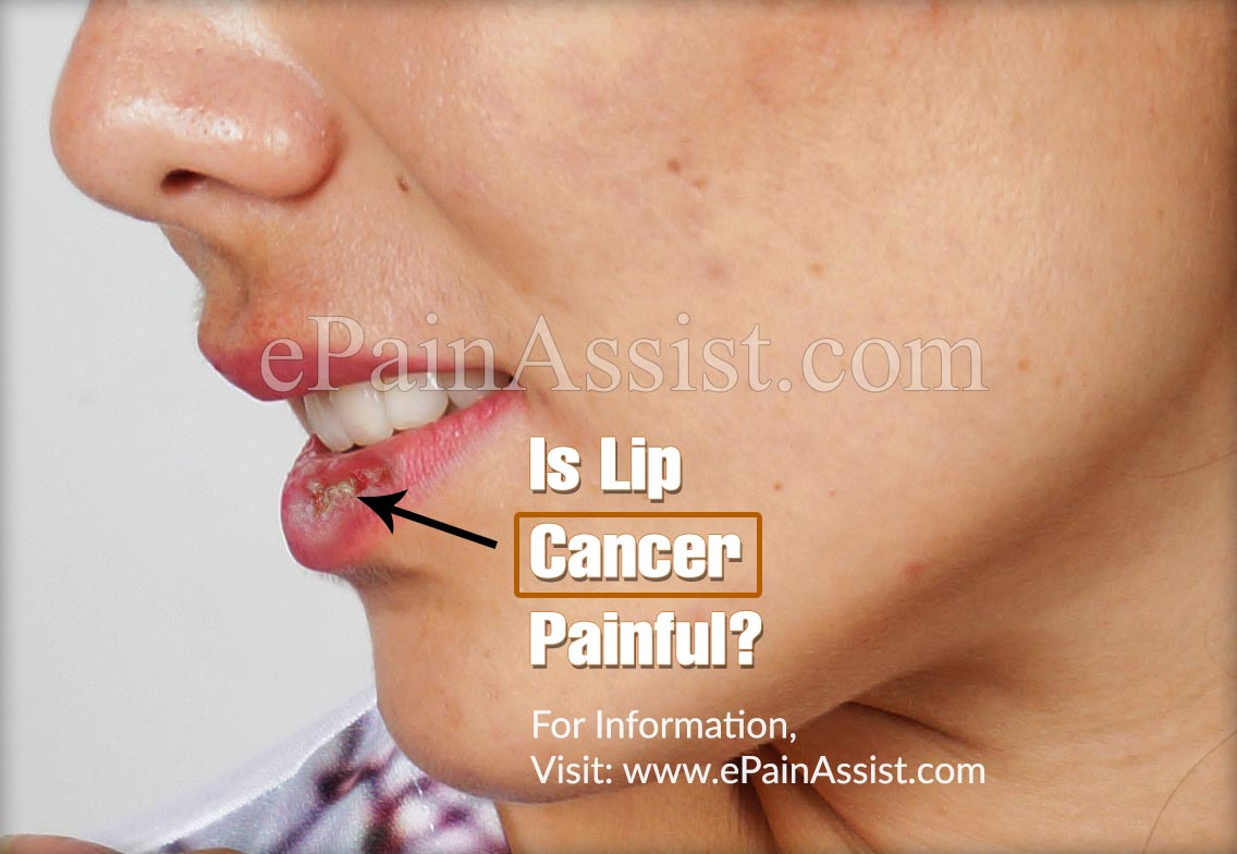 Is Lip Cancer Painful?