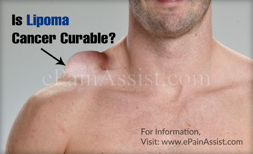 Is Lipoma Cancer Curable?