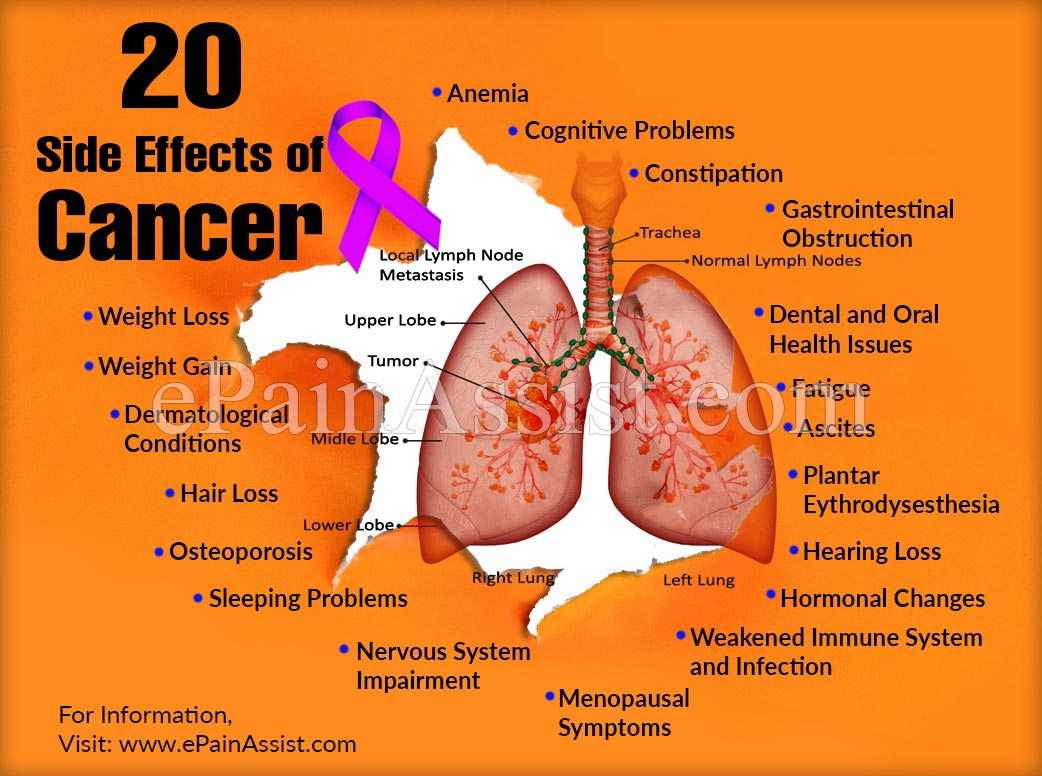 20 Side Effects Of Cancer