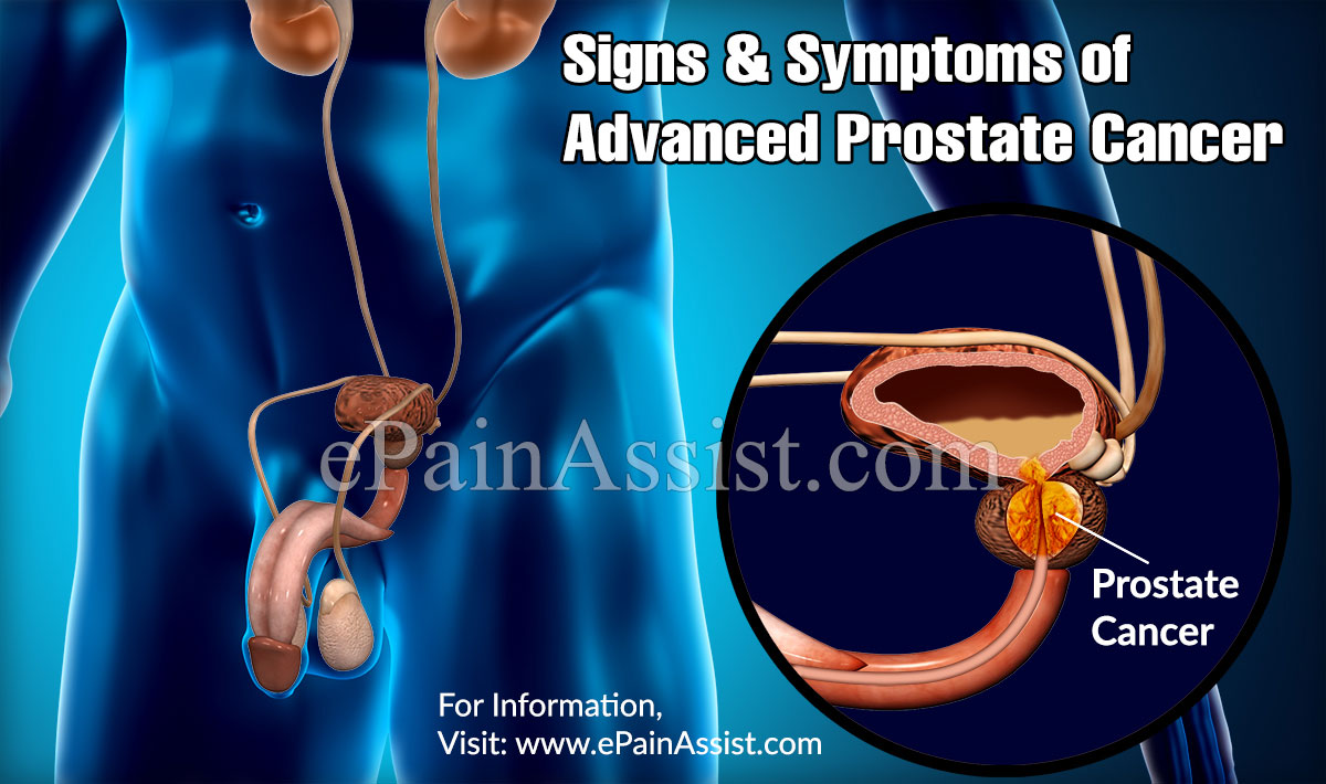 Signs & Symptoms of Advanced Prostate Cancer