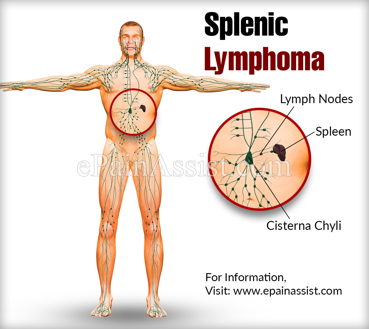Splenic Lymphoma
