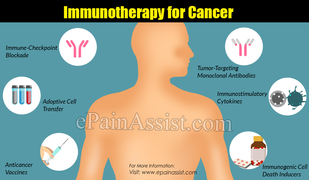 Types of Immunotherapy for Cancer
