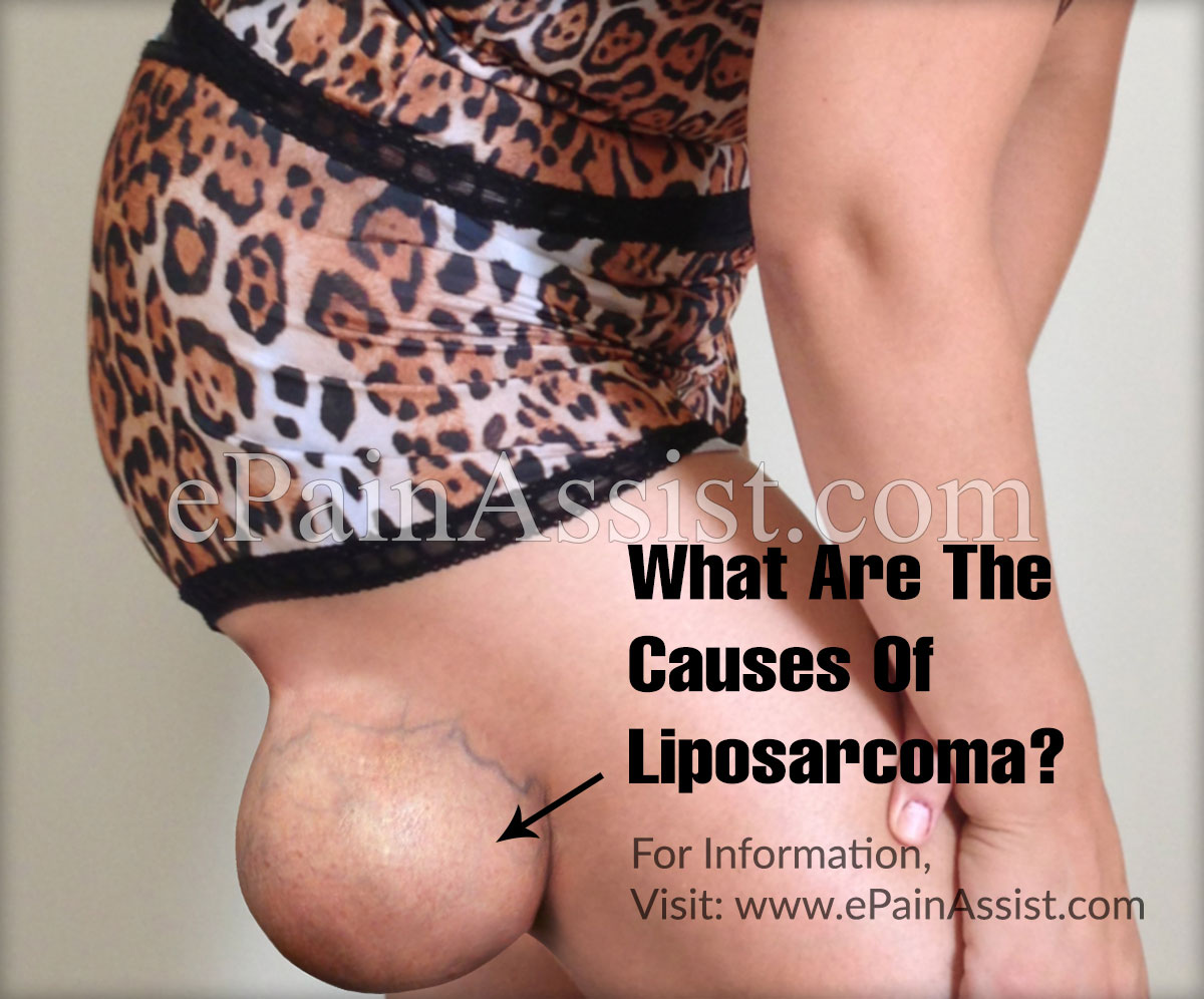 What Are The Causes Of Liposarcoma?
