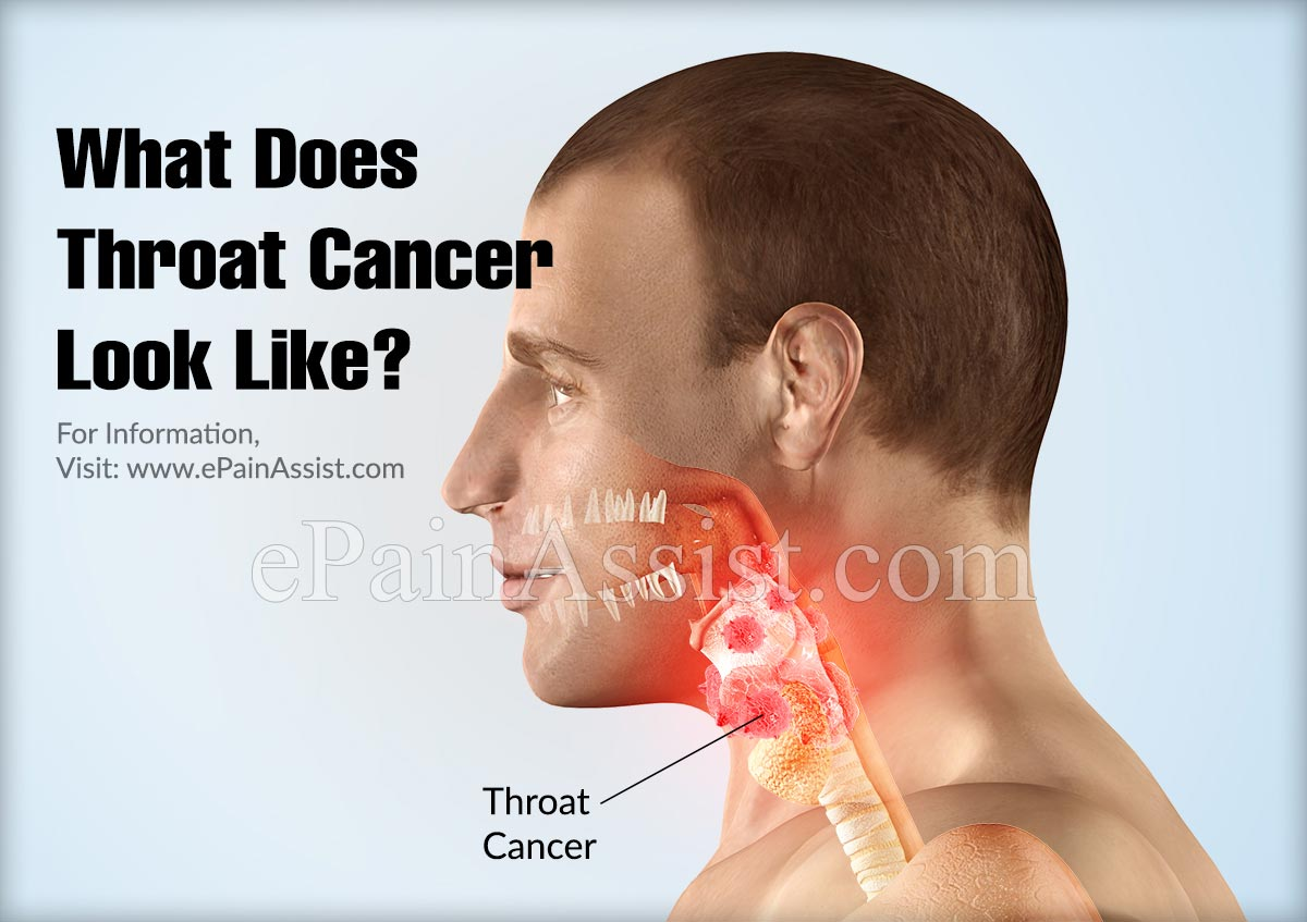 What does Throat Cancer Look Like?
