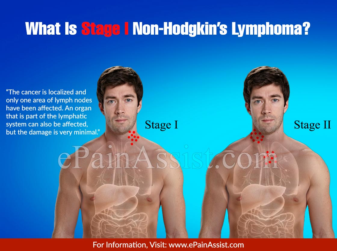 What Is Stage I Non-Hodgkin's Lymphoma?