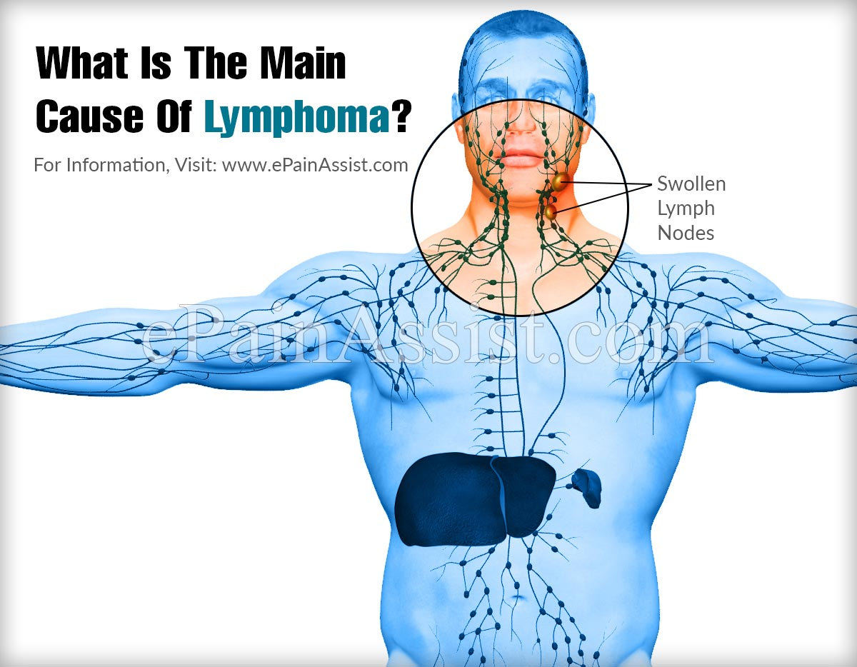 What Is The Main Cause Of Lymphoma?