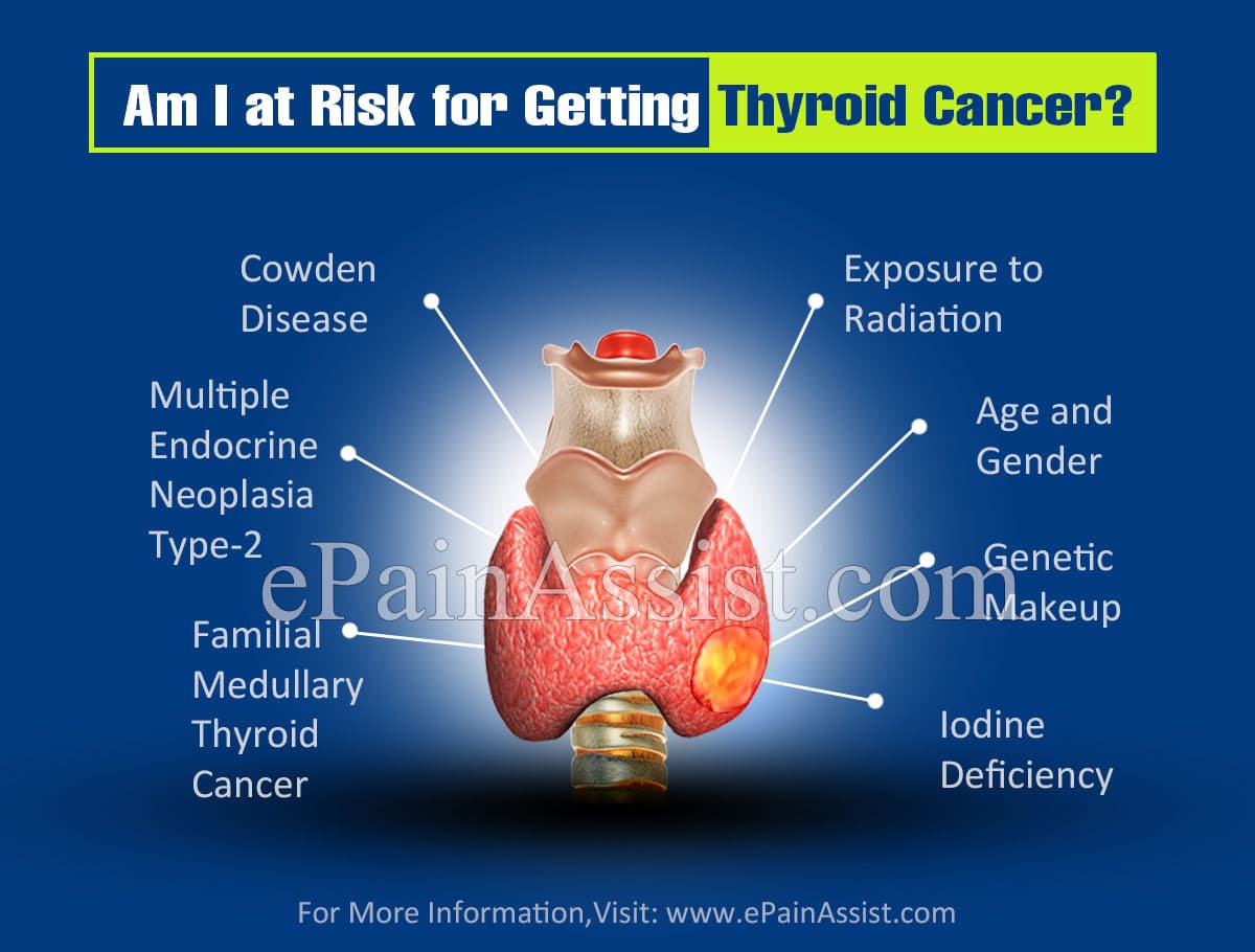 Am I at Risk for Getting Thyroid Cancer?