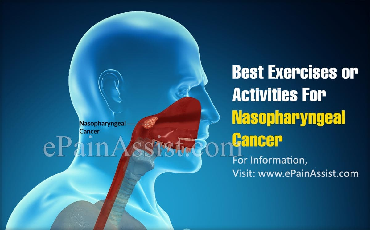 Best Exercises/Activities For Nasopharyngeal Cancer