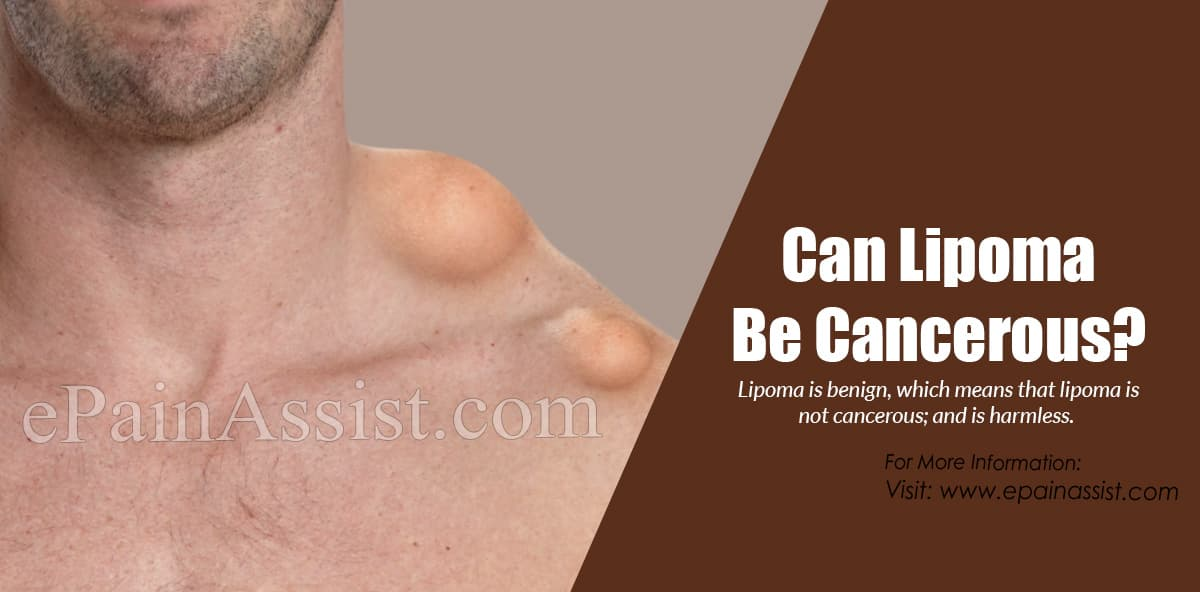 Can Lipoma Be Cancerous?