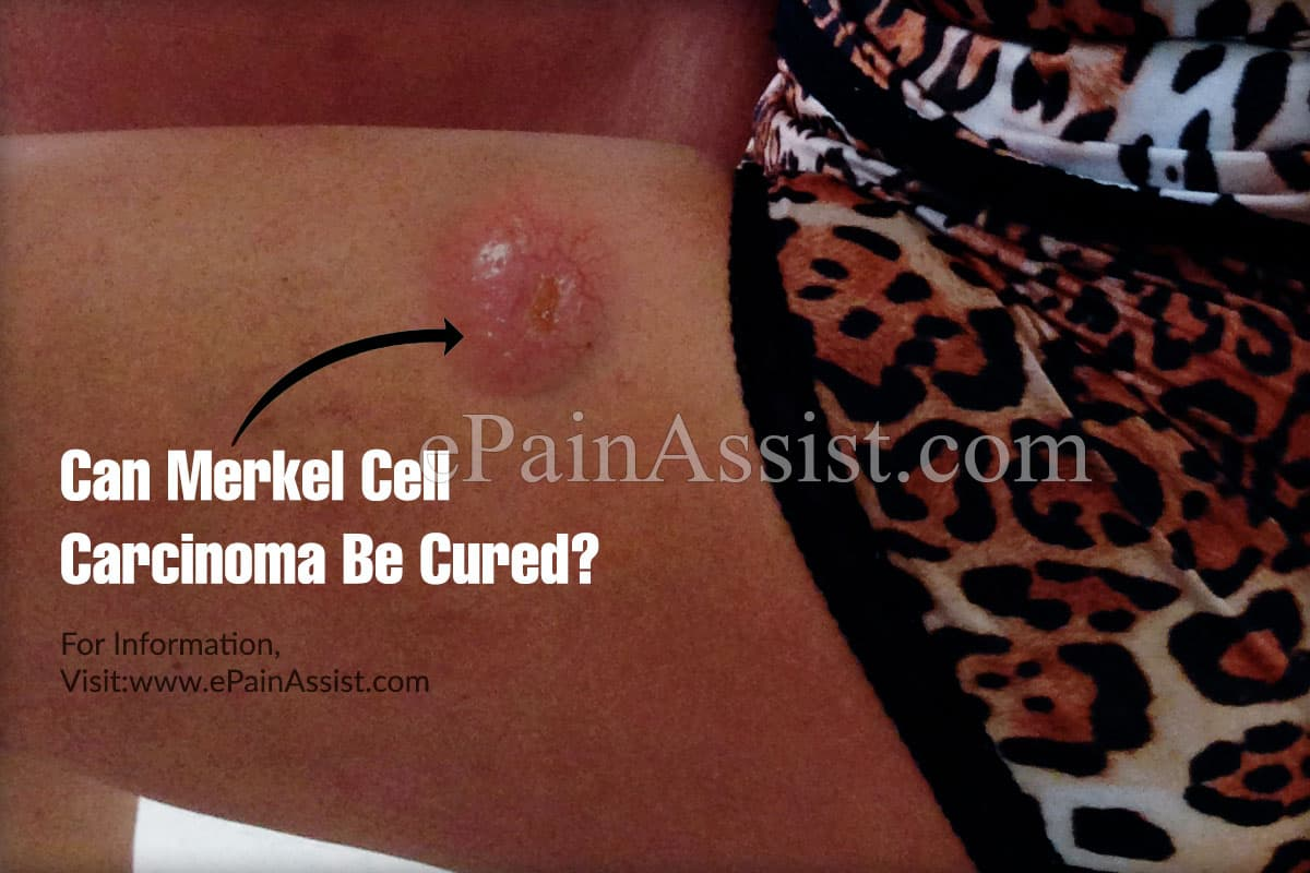 Can Merkel Cell Carcinoma Be Cured?