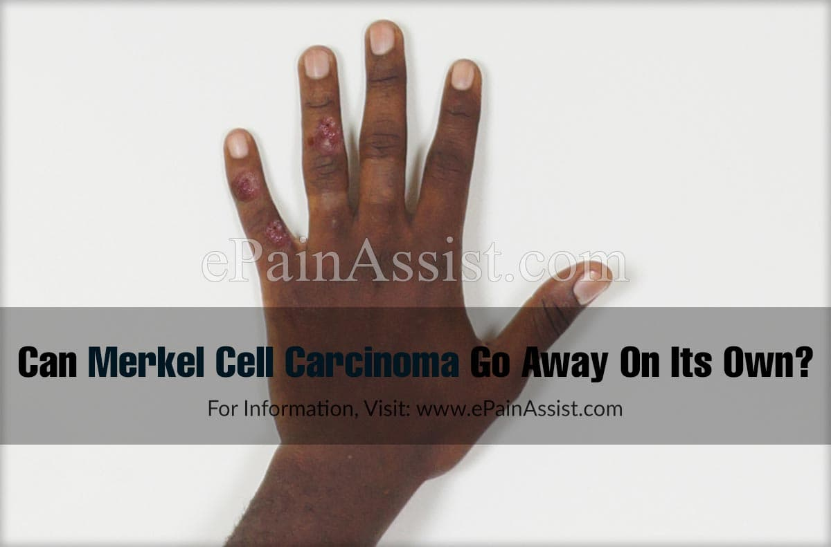 Can Merkel Cell Carcinoma Go Away On Its Own?