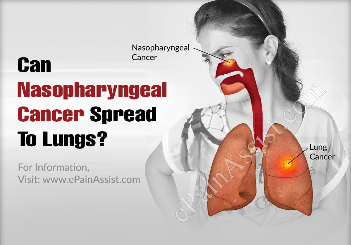 Can Nasopharyngeal Cancer Spread To Lungs?