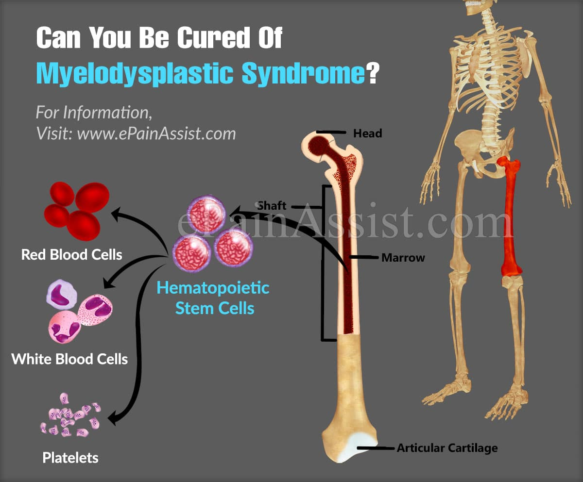 Can You Be Cured Of Myelodysplastic Syndrome?