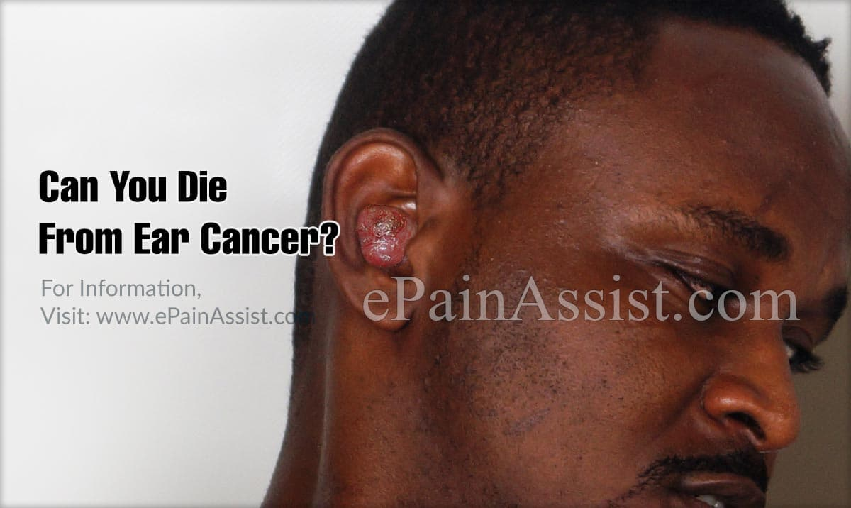 Can You Die From Ear Cancer?