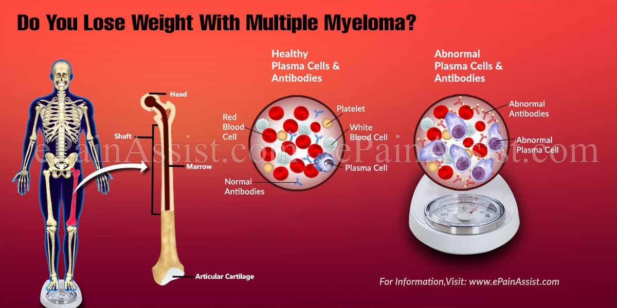 Do You Lose Weight With Multiple Myeloma?