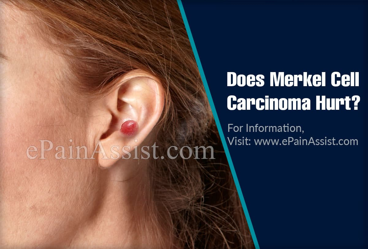 Does Merkel Cell Carcinoma Hurt?