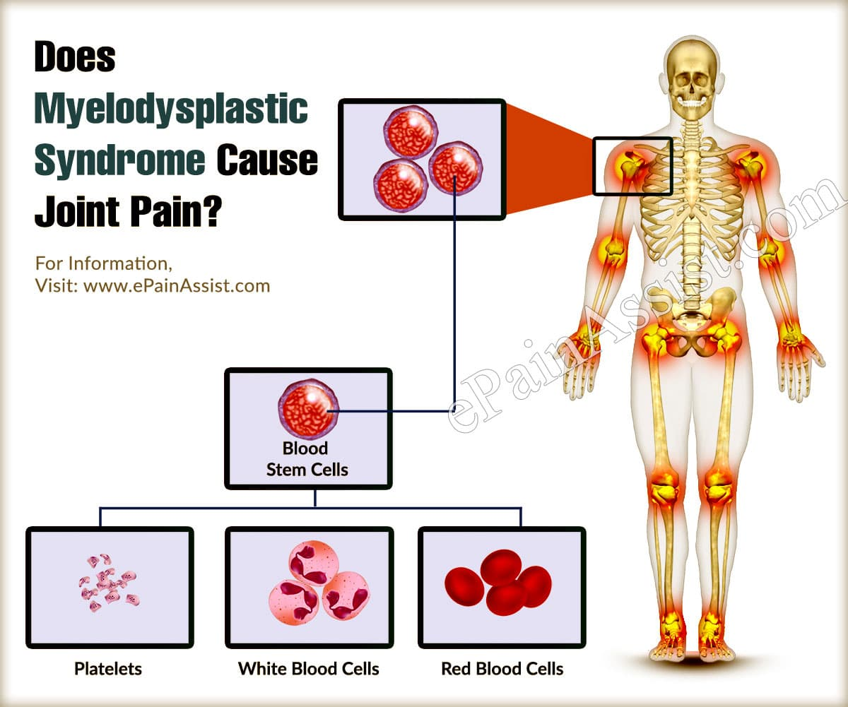 Does Myelodysplastic Syndrome Cause Joint Pain ?