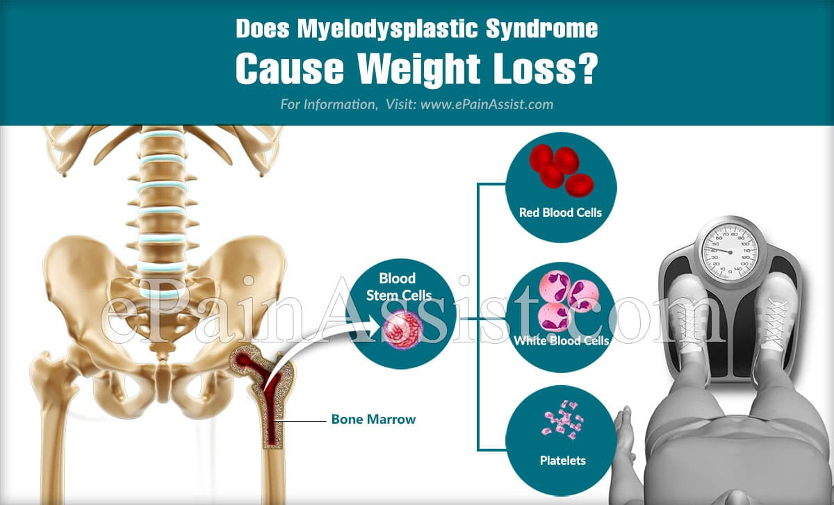 Does Myelodysplastic Syndrome Cause Weight Loss?