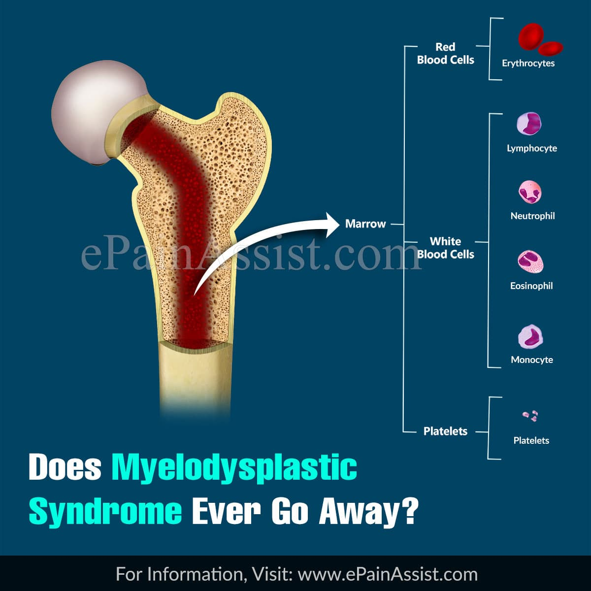 Does Myelodysplastic Syndrome Ever Go Away?