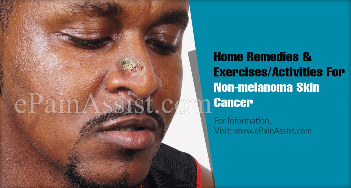 Home Remedies & Exercises/Activities For Non-melanoma Skin Cancer