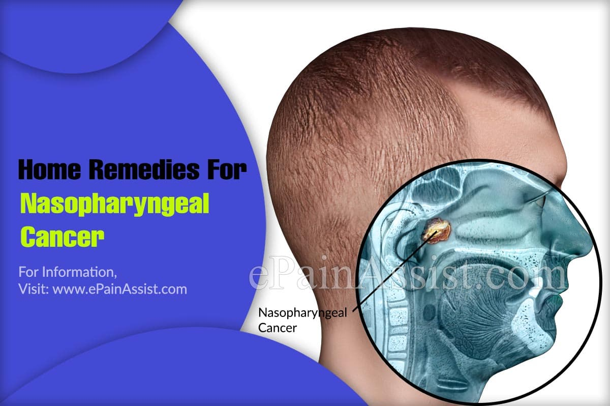 Home Remedies For Nasopharyngeal Cancer