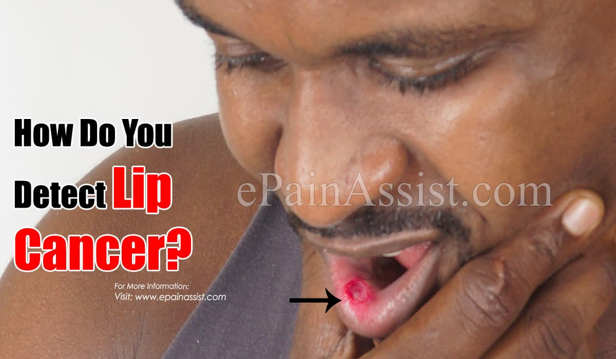 How Do You Detect Lip Cancer?