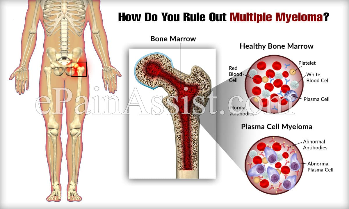 How Do You Rule Out Multiple Myeloma?