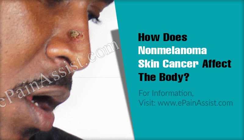 How Does Nonmelanoma Skin Cancer Affect The Body?