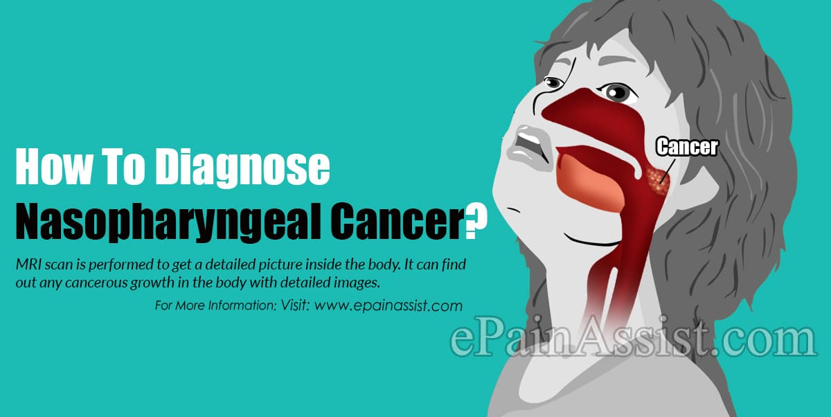 How To Diagnose Nasopharyngeal Cancer?
