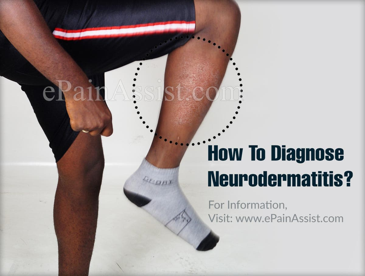 How To Diagnose Neurodermatitis?